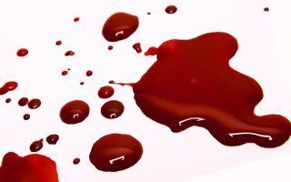 Как отстирать кровь с одежды, если пятно старое?