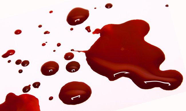 пятна крови на чистой одежде