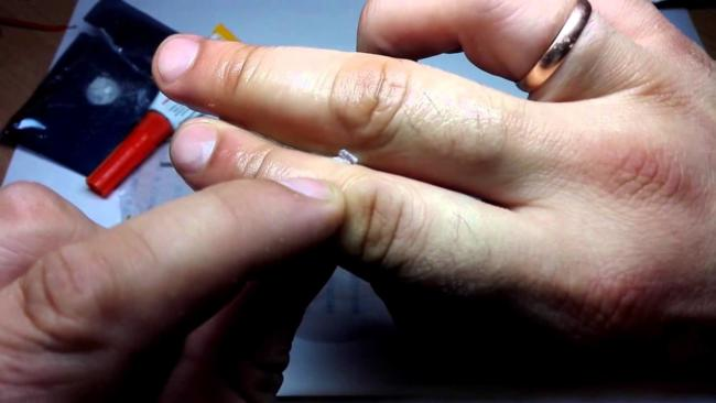 ногтями удаляем остатки суперклея с кожи
